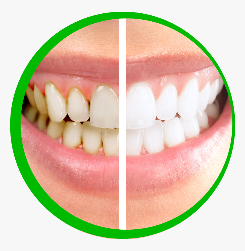 Tooth Care Png Dental Clinic Images Png Transparent Png Kindpng