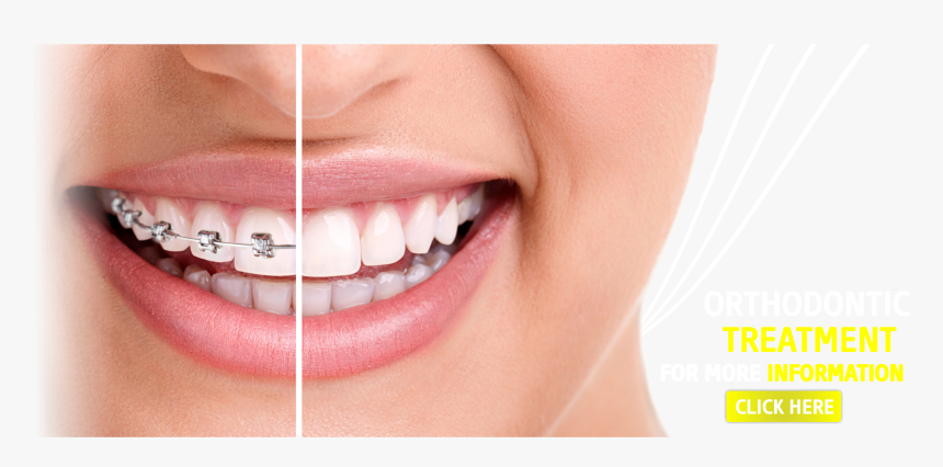 Braces With Straight Teeth Hd Png Download Kindpng