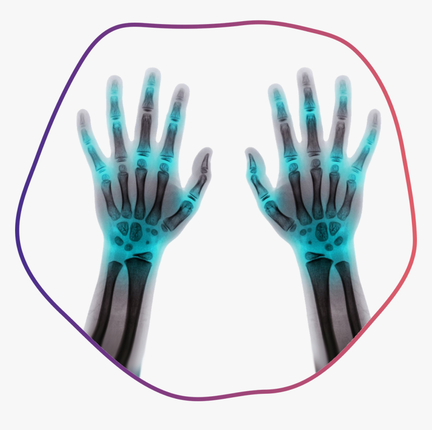 Fingers - X-ray, HD Png Download, Free Download