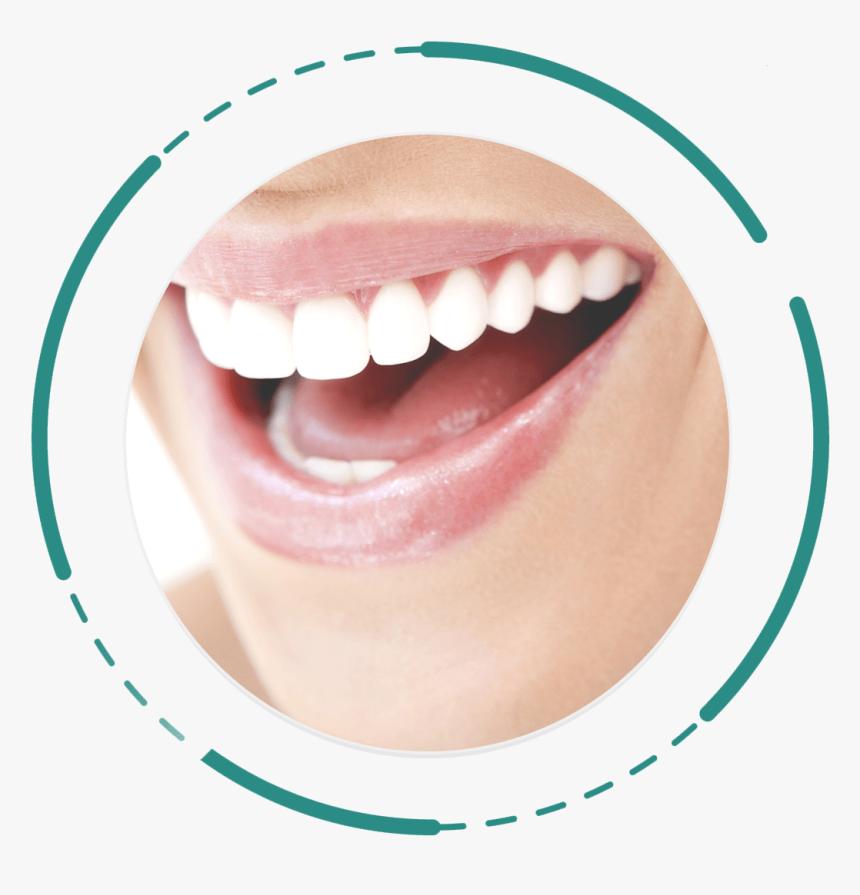 Digital Smile Design Promocion Limpieza Dental Queretaro Hd Png Download Kindpng