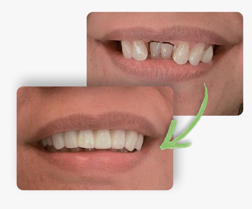 Teeth - Dentures, HD Png Download, Free Download