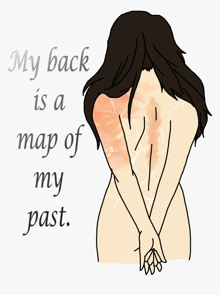 Drawing Cut Scar, HD Png Download, Free Download