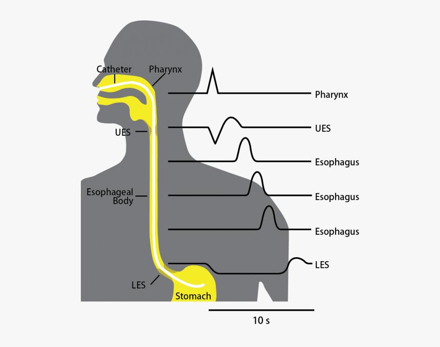 Esophageal Manometry - Esophageal Manometry Test, HD Png Download, Free Download